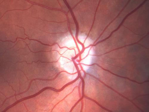 iachemia and eye