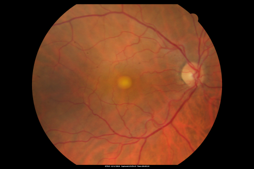 macular dystrophy retina - photo #44