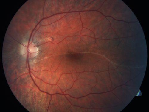 Macular Demarcation Line And Symptomatic Distortion 3 Years Following Asymptomatic Retinal Detachment Repair