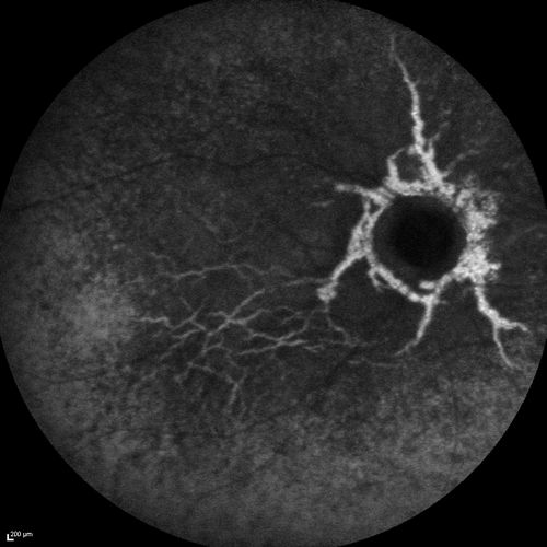Angioid Streaks And Macular Degeneration