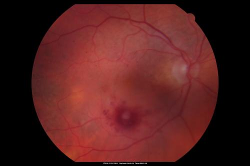Retinal arterial macroaneurysm (RAMA). EyeRounds.org: Online ...