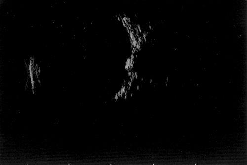 Optic Disc Drusen B Scan Optic nerve head drusen b-scanOptic Disc Drusen B Scan