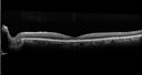 Confluent Soft Drusen with Subetinal Fluid - Right Eye