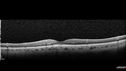 Acute Central Retinal Artery Occlusion