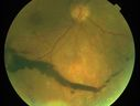 Macula Threatening Diabetic Traction Retinal Detachment - Proliferative Diabetic Retinopathy - Vitreous Hemorrhage