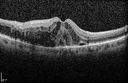 Self Sealed Retinal Arteriol Macroaneurysm
