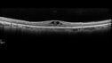 Retinitis Pigmentosa with Cystoid Macular Edema responsive to topical carbonic anhydrase inhibitors