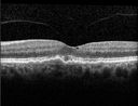Macular Telangiectasia and dry AMD - Simulating wet AMD
