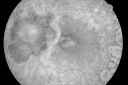 Acute Zonal Occult Outer Retinopathy with Severe Peripheral Vision Loss Left Eye