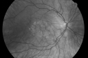 Best Disease for 30 Years - 20/50 Vision both eyes - 61 Year Old Woman