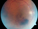 Branch Retinal Vein Occlusion with worse macular edema from hypertension - Photo from 2008 with initial occlusion - Vision 20/40