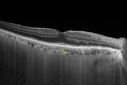 Choroidal Hemangioma - Diffuse - Enhanced Depth Imaging Spectral Domain OCT Line Scan - Normal Eye
