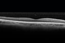 Cystoid macular edema 4 months following cataract surgery with serous retinal detachment