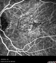 Non-exudative wet AMD right eye (treatment naive quiescent)