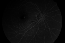 Macular Hemorrahge and Probable CNVM Right eye for 2 weeks VA 20/400 - 20 Year old