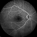 Central Retinal Artery Occlusion with Cilioretinal Sparing - Acute