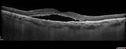 Multifocal Bilateral Central Serous Retinopathy in African American Male