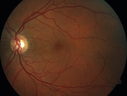 Chronic CSR with mild vision loss - Macular Atrophy Right Eye
