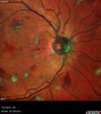 Leukemic Retinopathy - Non-perfusion - cotton wool spots - hemorrhages