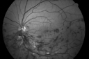 Hemi Central Retinal Vein Occlusion 35 year old non-compliant man