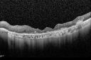 Macular Laser Scars - Patient had Central Retinal Vein Occlusion in her only eye