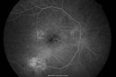 Macular Scar Left Eye from Age-Related Macular Degeneration