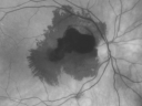 Ruptured Retinal Arterial Macroaneurysm - Submacular Hemorrhage - Vision 20/400 never recovered - Hypertension 205/94