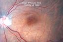 Macular Hole Closed - Nerve Fiber Layer Defects Visible after Internal Limiting Membrane Peel - Vision 20/60