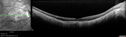 Myopic Traction Maculopathy - Long Term Follow-up