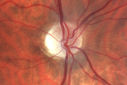 Optic Nerve Hypoplasia - 43 Year Old Man - declining vision