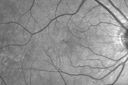 Outer Retinal Holes - Probably Solar Retinopathy (history is negative)