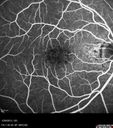 Central Serous Retinopathy 25 year old professional baseball player - Atypical - Choroidal Hypo-perfusion?