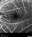 Central Serous Retinopathy 25 year old professional baseball player - Atypical - Choroidal Hypo-perfusion?Central Serous Retinopathy 25 year old professional baseball player - Atypical - Choroidal Hypo-perfusion?