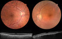 Sturge-Weber with Choroidal Hemangioma Left Eye