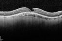 OCT shows lamellar macular hole left eye