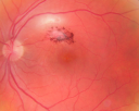 Toxoplasmosis - Inner Retinal - Recurrent - Treated with Bactrim DS