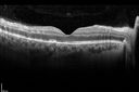 West Nile Virus Multifocal Choroiditis and diabetic retinopathy