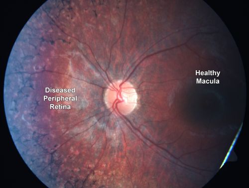 study proposal causative mutations in optic neuropathy Leber's hereditary optic neuropathy (lhon) or leber hereditary optic atrophy is a   early trials or are proposed, none yet with convincing evidence of usefulness  or safety  the rescue of hereditary optic disease outpatient study (rhodos)   the nature of the causative mutation was first identified in 1988 by wallace et.