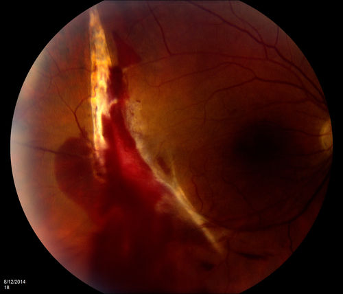 Choroidal Rupture With Subretinal Hemorrhage