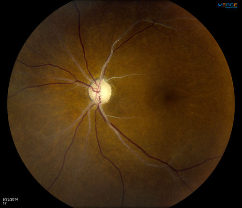 Retinal Artery Occlusion - Silver Wiring - Retinal Artery ... on