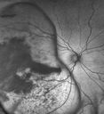 Large Choroidal Melanoma with Retinal Detachment