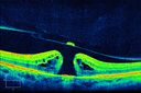 HD OCT of Macular Hole with Operculum
