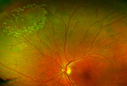 Retinal Tear with Laser Treatment