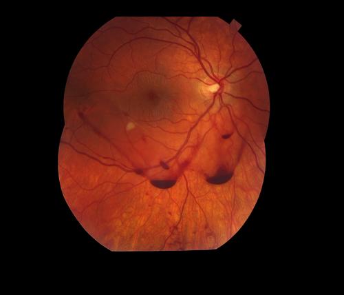 Vitreous Hemorrhage Traumatic vitreous hemorrhage