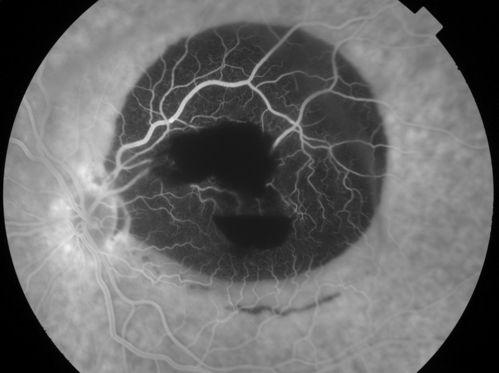 EyeRounds.org - Ophthalmology - The University of Iowa