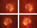 OU Stereo Pair Optic Disc Drusen
